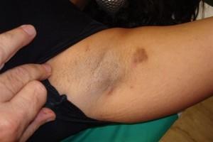 casos-clinicos-1-2-2009-001
