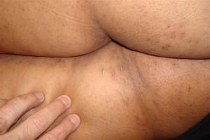 casos-clinicos-1-2-2009-003