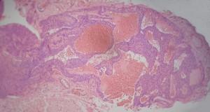 espacios-vasculares-en-la-tumoracion