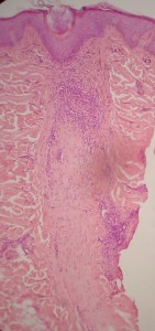 fibrosis-del-foliculo-piloso