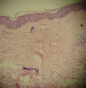caso-5-biopsia-1-1