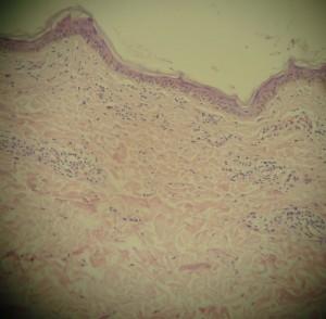 caso-5-biopsia-1-2