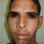esclerodermia-lineal-3