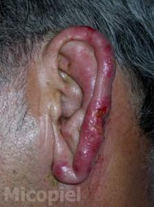 caso_clinico_37_3_html_m2f128a21