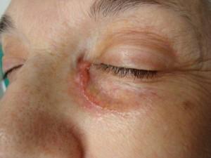 Foto 1 clinica antes de la biopsia