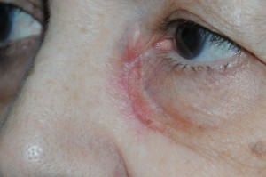 foto 2 clinica 1 antes de cirugia