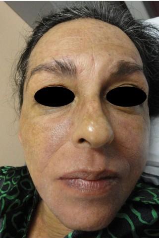 Placas eritematosas de aspecto infiltrado