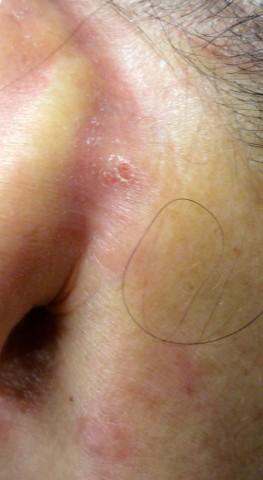 Figura 3 Cuello anterior   y retroauricular pequeños nódulos eritematosos