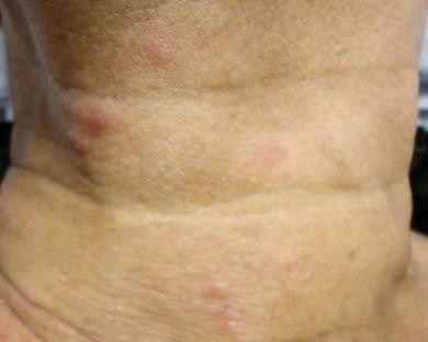 Cuello anterior   y retroauricular pequeños nódulos eritematosos
