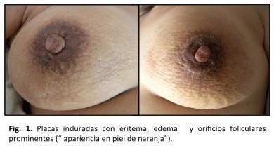 inflamatorio-1