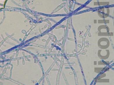 Fig. 19: Impronta del cultivo con cinta adhesiva transparente coloreado con azul de metileno.