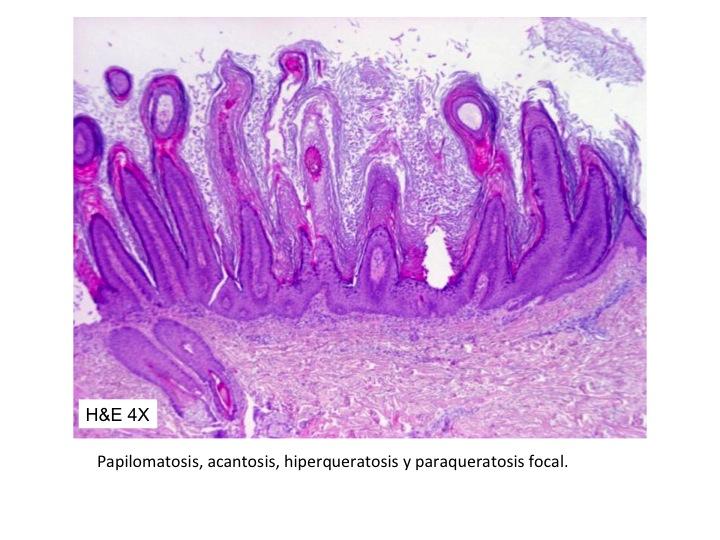 Papilomatosis piel histopatologia