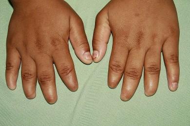 Fig.1: Manos: ausencia  de las uñas del 2do al 5to ortejo  de mano derecha y del 2do al 4to ortejo de mano izquierda
