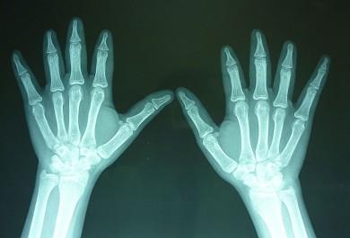 Fig.3: Radiografías AP de manos: Ausencia de la 2da falange del 2do, 3er y 4to dedo observándose la falange distal en forma de punta de lápiz