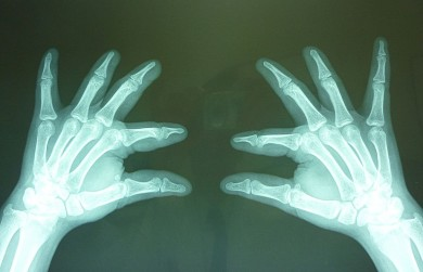 Fig.4: Radiografías oblicua  de manos: Ausencia de la 2da falange del 2do, 3er y 4to dedo observándose la falange distal en forma de punta de lápiz