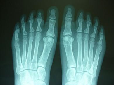 Fig.5: Radiografías AP pies: ausencia de la 2da falange del 3er dedo bilateral y fusión de las falanges distales 4to y 5to dedo del pie izquierdo