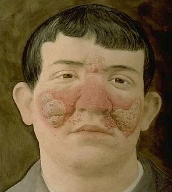 La dermatite séborrhéique (fotografia em blanco y negro retocada): Félix Meheux Fotografo del L`hospitel Saint Louis de Paris 1884 – 1904