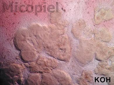 Fig. 14: Examen directo con KOH 10% con luz indirecta para observar el relieve de los granos (100x)