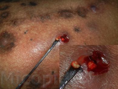 Fig. 7: Se tomó muestra con asa estéril para estudio microbiológico