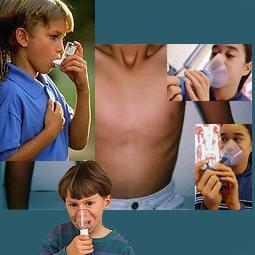 asma-2
