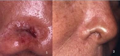 Un Ca. Basocelular esclerodermiforme en el ala nasal, se reseca y se coloca un injerto condrocutáneo. (Foto n° 1: preop. Foto n° 2: seis meses después.