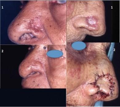 Dos ejemplos con el mismo procedimiento, el uso del injerto condrocutáneo.