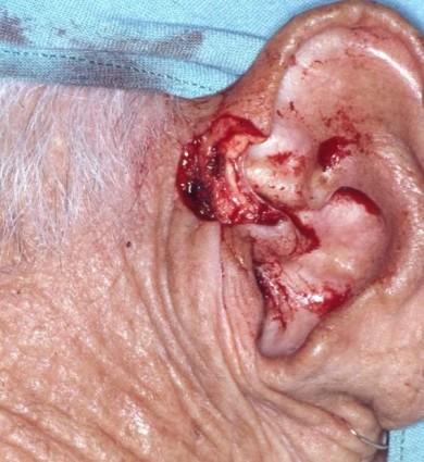 """El injerto condrocutáneo es un procedimiento interesante que puede ser empleado en la cirugía reparadora de la piel. Es uno de los injertos compuestos, los otros serían """"piel y grasa"""", """"piel y músculo"""" o """"piel y pericondrio"""". Se emplea en la reconstrucción de defectos na sales (ala nasal, columela, margen libre alar). El préstamo puede ser de helix auricular, o concha, dependiendo de los requerimientos. En los casos presentados anteriormente, usé la parte anterior del helix como sitio de préstamo. Esa zona se sutura borde a borde y casi no deja cicatriz. La sutura del injerto debe ser extremadamente cuidadosa, para que los tejidos queden bién unidos, porque con frecuencia puede necrosarse por falta de irrigación. Queda esta presentación a la consideración de los lectores de Piel-L."""