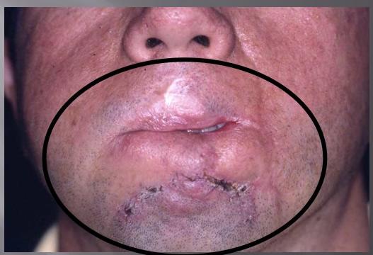 En un segundo tiempo se procede a reconstruir los labios  mediante la movilización de colgajos laterales tallados uno en semiarco en el pliegue mentoniano derecho y el otro en el pliegue nasobucal izquierdo. Con resultados anatómico     y funcional aceptable. Aquí vemos el resultado; con una revisión  de la cicatriz del surco mentobucal; queda pendiente  la comisurotomía izquierda para agrandar la abertura bucal. ?