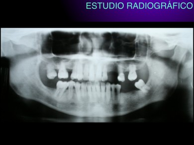 ed345-enfermedades-boca.004