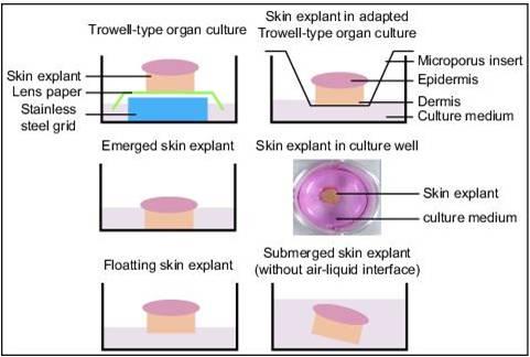 skin explant model