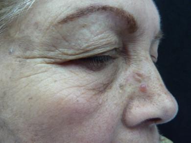 Foto clínica de la paciente, lesión de aspecto quistico, en domo, blanda, transparente, tensa. Aproximadamente 0.5 cm de diámetro.