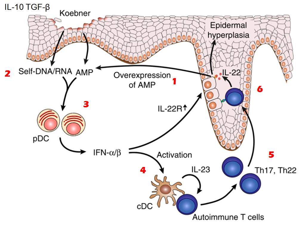 CDp psoriasi & koebner -PIEL LAT