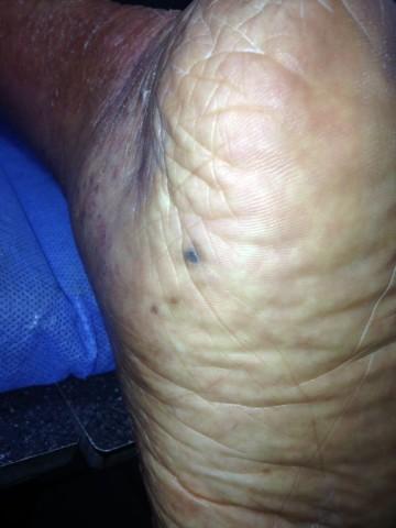 ed354-dermatoscopia-01