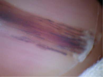 Aspecto dermatoscópico de la onicopatía