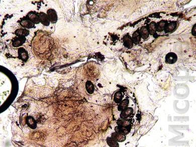 Fig. 6: Examen directo con KOH 20% de la placa en 2ª falange de dedo índice D. Se observan abundantes huevos de Sarcoptes scabiei var. hominis. Estos elementos parasitarios también se apreciaron en las muestras tomadas de las uñas de mano (superficial y subungular)