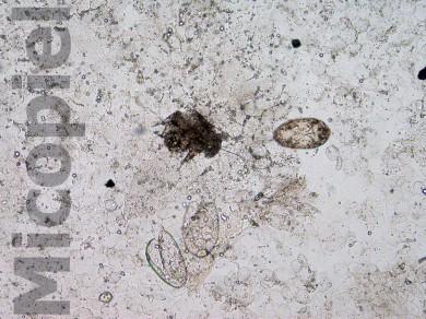 Fig. 14: En el examen directo de control a las dos semanas con KOH 20% del detritus subungular se siguen observando huevos germinados, eclosionados y ácaros de Sarcoptes scabiei var. hominis pero en menor densidad parasitaria