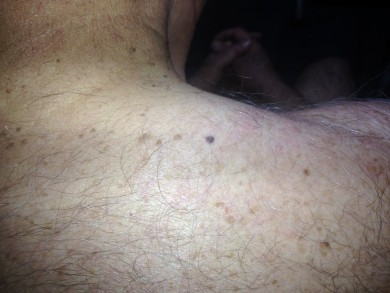 ed366-dermatoscopia-foto 1