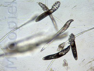 ed366-micopiel-2da-10