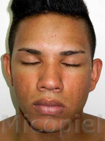 Fig. 15: Control terapéutico (3 meses)