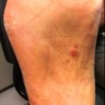 Fig 3. Clavos sifilíticos en la planta del pie.