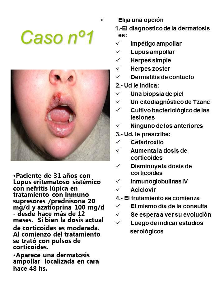 381-colagenopatia-Diapositiva1