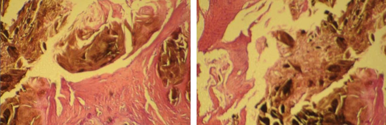 curar la gota de manera natural acido urico por todo el cuerpo cristales de acido urico en orina en ninos pdf