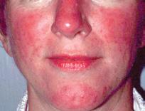 acne-397