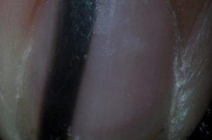 escalpelo-399