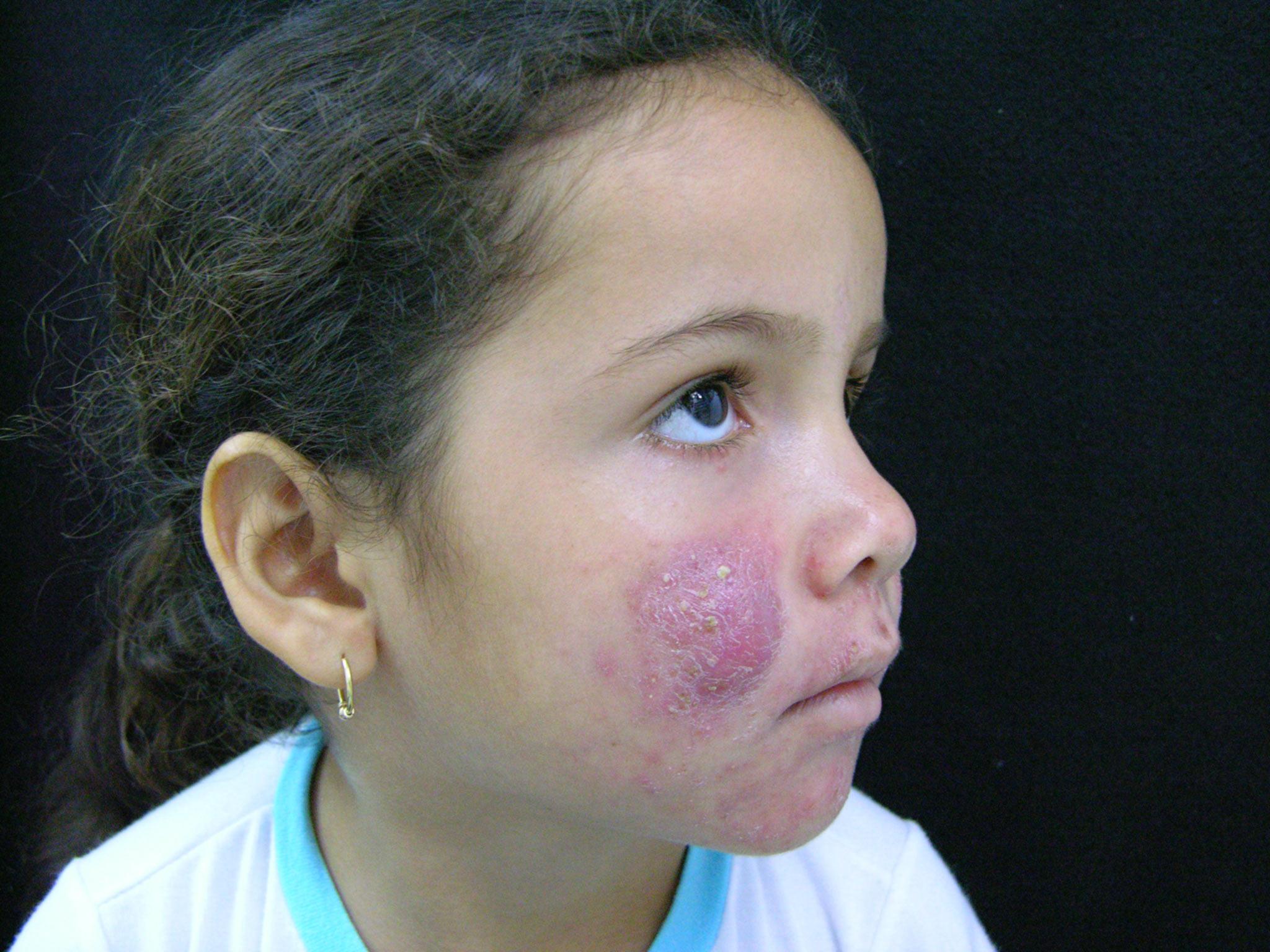 Dermatitis Solar Tratamiento Natural Manchas En La Cara