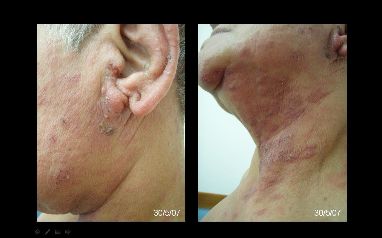 Dermatofitias | Medicina em Casa