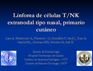linfoma-cutaneo.jpg