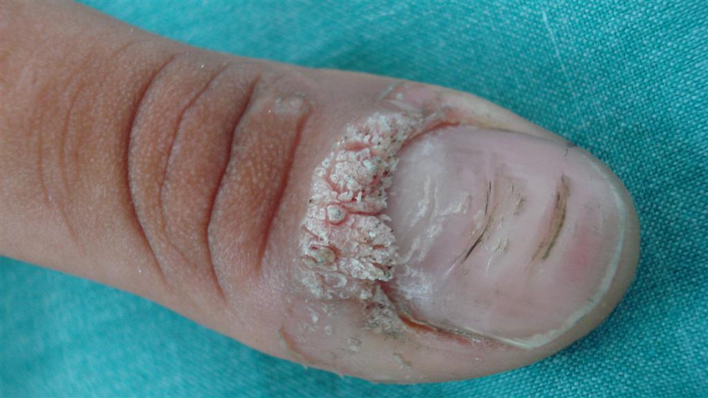 Los síntomas del hongo de los pie y el tratamiento