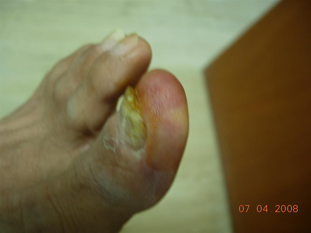 196 Consulte a un Colega N° 3: Tumor doloroso del dedo del pie ...