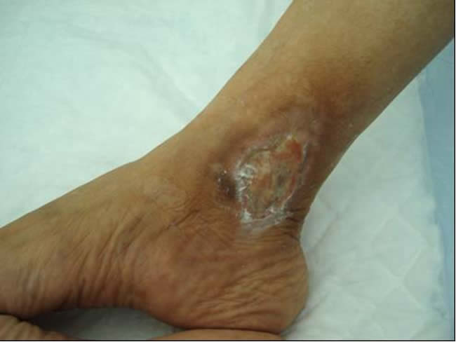 La sal a la tromboflebitis es posible